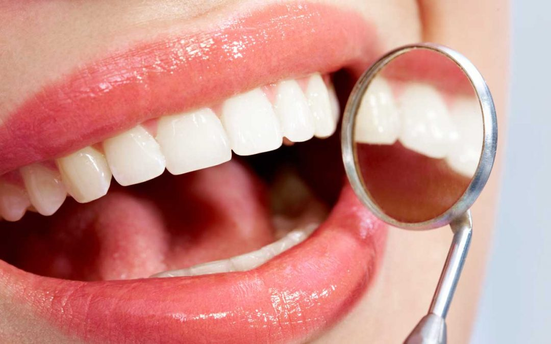 How Much Does Professional Teeth Whitening Cost